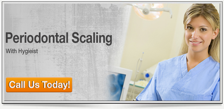 periodontal-scaling-banner